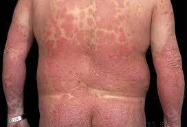 psoriasi vulgaris